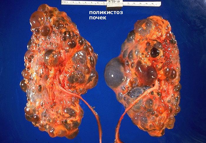 Простая Гипоплазия