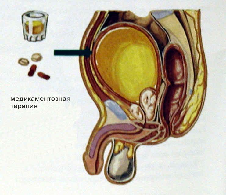 fokusin-i-sperma