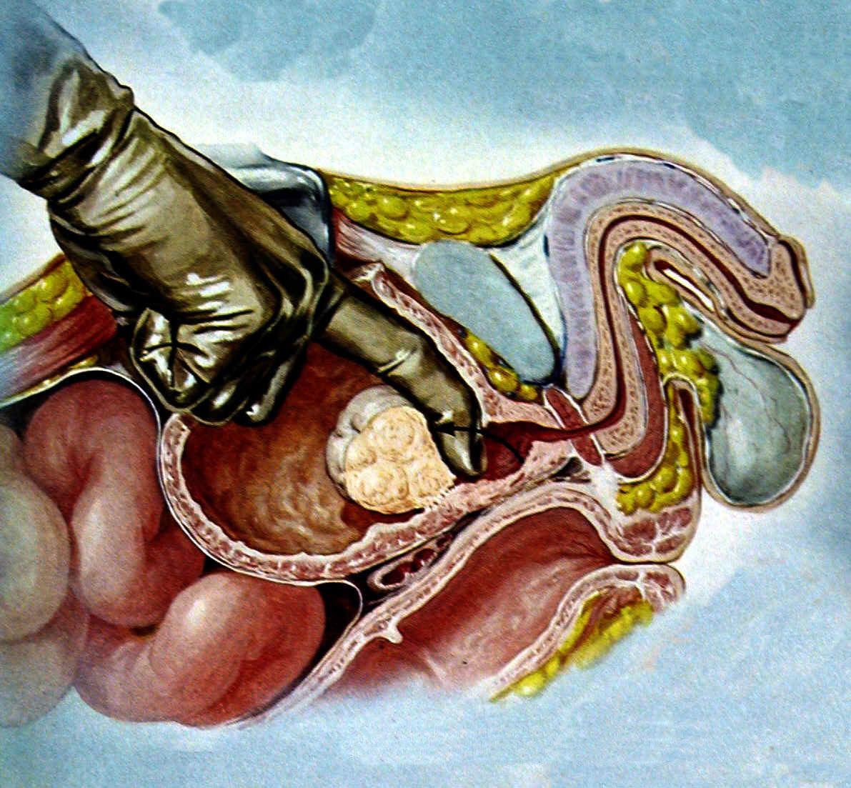 Форум какое лекарство эффективное при лечении простатита
