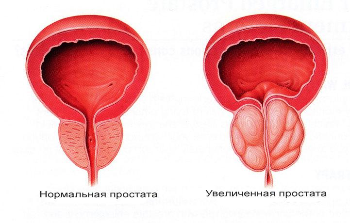 Ультразвуковой аппарат лечения простатита