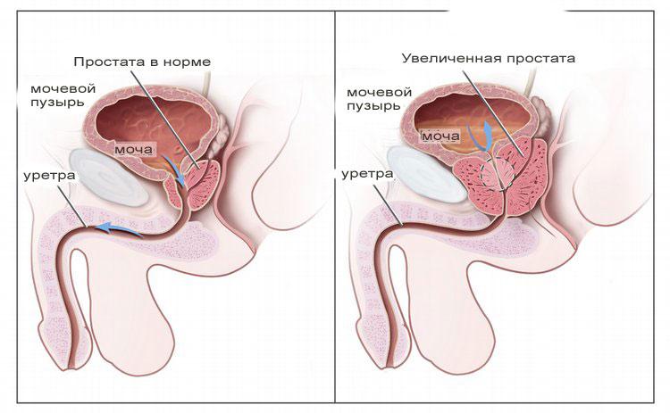 Недорогие препараты от простатита и аденомы