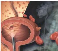 Симптомы рака почки