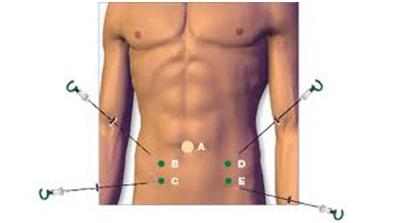 Радиоволнового лечения простатита