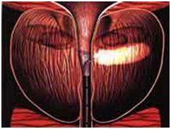 Вздутие предстательной железы