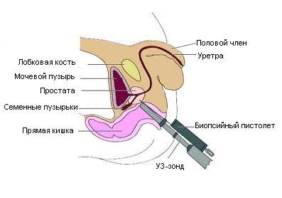Биопсия простаты   Мой уролог