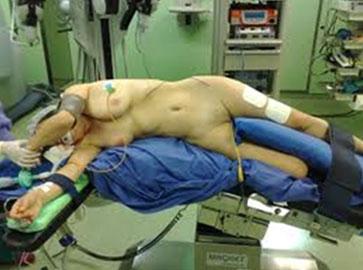 Лапароскопия при опущении почки Мой уролог