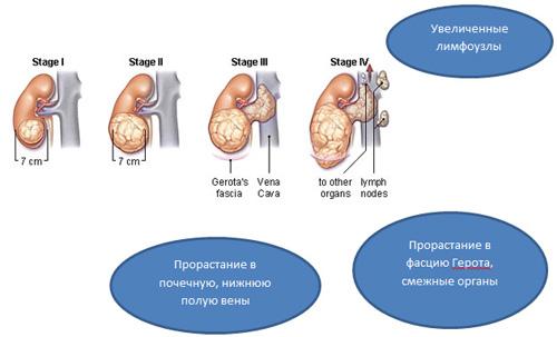 Как лечить рак почки народными средствами форум